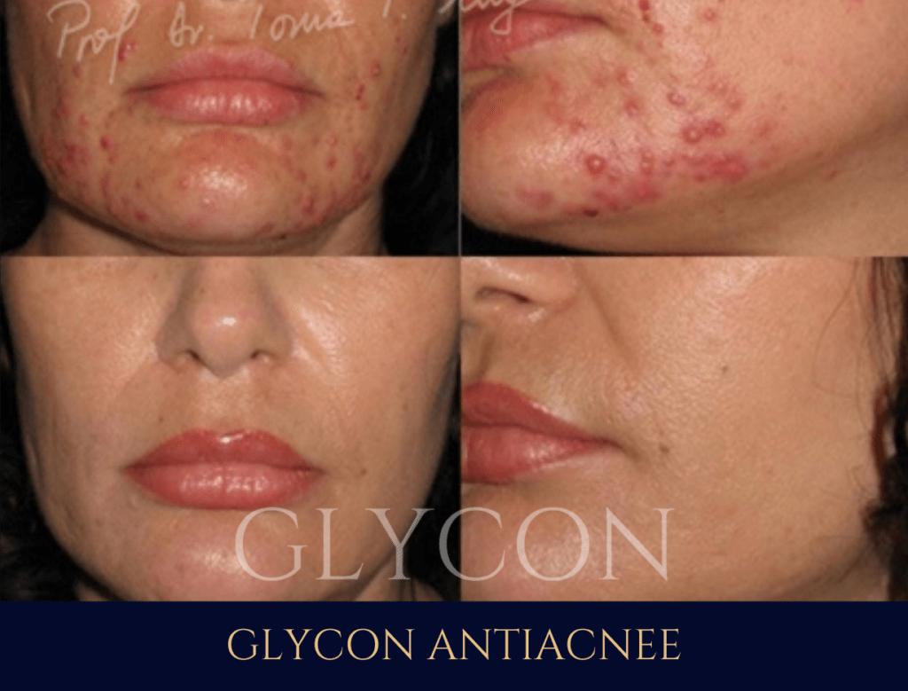 galerie foto inainte dupa tratament glycon antirid antiacnee acnee toma mugea